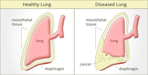 Statute Of Limitations On Mesothelioma Claims 2 by Mesothelioma Court Cases