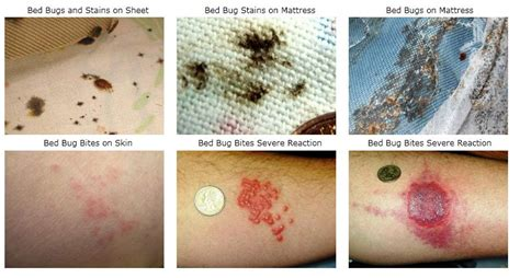 Exterminator Cost For Bed Bugs