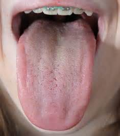 normal tongue color introduction to tongue assessment for the western herbalist