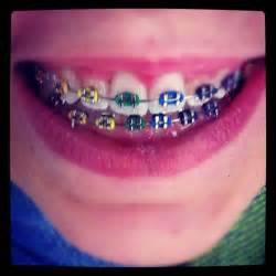 best color braces best 25 braces colors ideas on