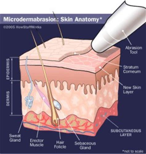 microdermabrasion mesa laguna hair removal
