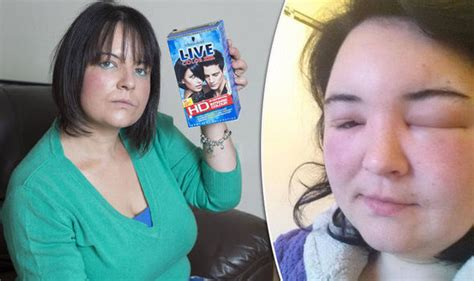 hair dye for sensitive skin and allergies mum temporarily blinded after severe allergic reaction to