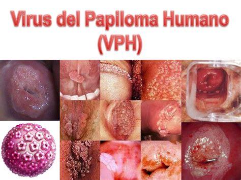 imagenes vph mujeres imagenes del virus del papiloma humano en mujeres www