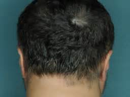 can you get a elaxer with alopecia arthritis drug helps bald man grow full head of hair