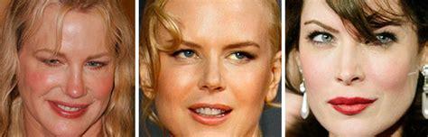 imagenes impactantes cirugias uno news net actrices que arruinaron sus rostros por las