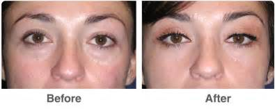 eye color surgery before and after blepharoplasty surgery in las vegas nv