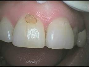 how to fix a cavity at home white fillings stoke road dental practice