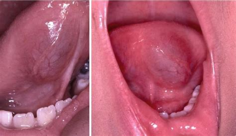 Bumps On Floor Of Tongue by Mucosal Lumps And Bumps With Smooth Surfaces Pocket