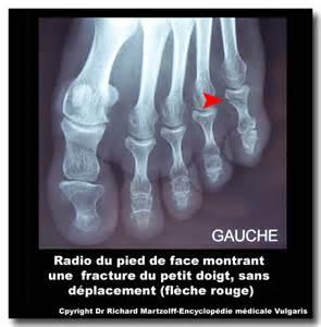 image photo fracture du doigt du pied imagerie