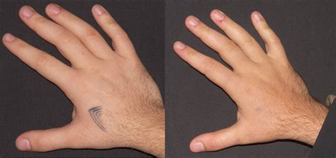 small tattoo removal tattoo hand