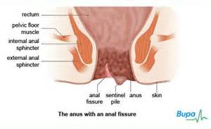 Itching After Passing Stool by What S An Fissure Doctor Answers On Healthtap