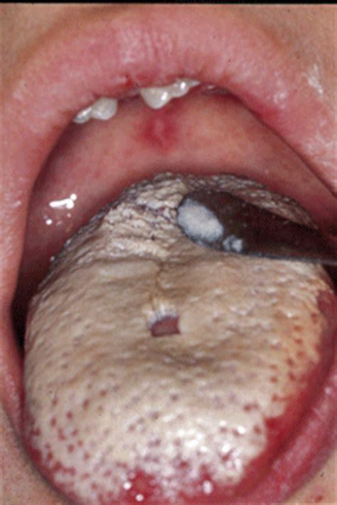 imagenes de manchas blancas en la boca lesiones blanquecinas en la mucosa oral aravico net16 net