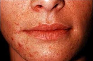Salep Accutane penyakit kulit gatal dan ruam noninfeksi