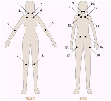 fibromyalgia tender spots diagram fibromyalgia and physical therapy with the method