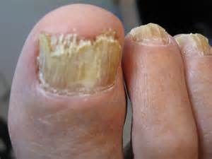 Toe Nail by Image Gallery Onychomycosis Of Toenails