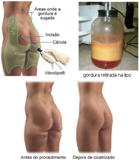 Plastik Segel 4 Cm By Nomi Mino cirurgia pl 193 stica club vip da lulusinha de moda e