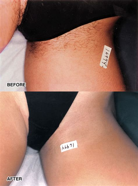ipl hair removal le corte beauty clinic