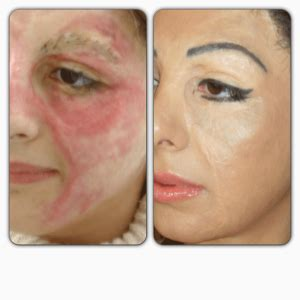 medical tattooing for scars permanent makeup tattooist basma hameed hides scars burns