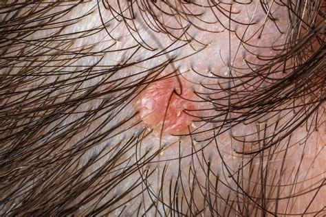 granos en el cuero cabelludo dermatologia tratamento para dermatite seborreica dr marco ant 244 nio