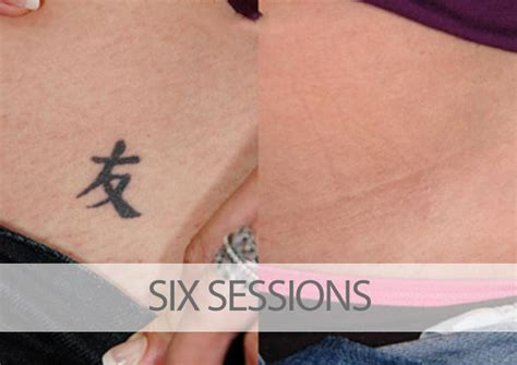 tattoo removal near me cost before and after laser tattoo removal results eraditatt
