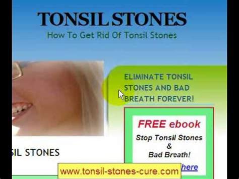 tonsil stones cure tonsilloliths youtube