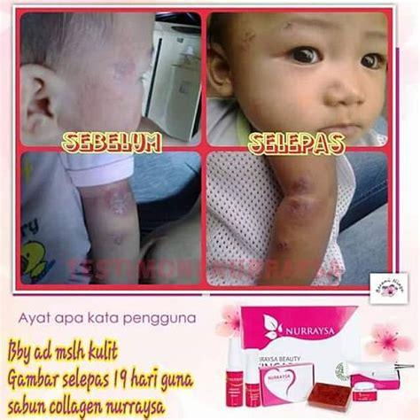 Sabun Muka Remaja sabun kulit untuk baby