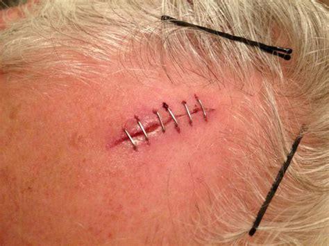 punti sutura interni suture chirurgiche tipologie e metodi di miscelazione