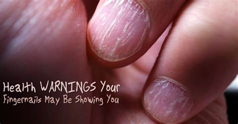 Speaking Of Healthy Nails by Health Warnings Your Fingernails May Be Showing You Shtf