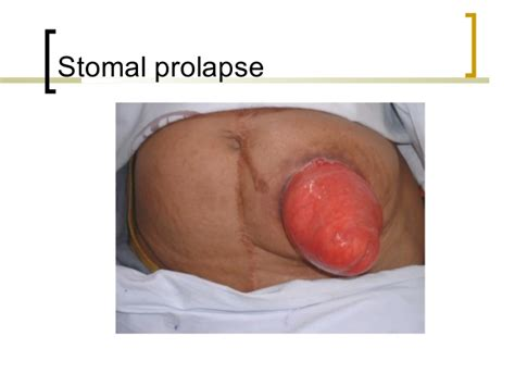 Colostomy Stool Consistency by Stoma Care Basics N