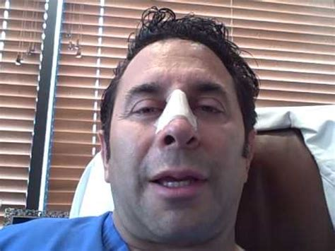 dr nassif dr paul nassif nasal injury journal day 1 youtube