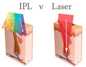 diode vs ipl ipl vs laser a guide to understanding light treatments