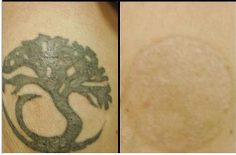 turlington tattoo remover 30 best removals images on picture