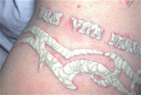 tattoo care what to expect amalgam tattoo in mouth all about health