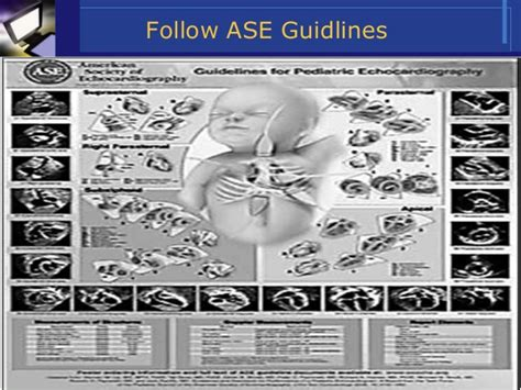 echocardiography report sle echocardiography report sle 28 images renal cardiac