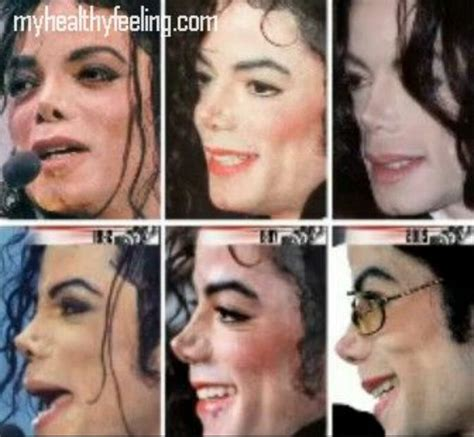 how did michael jackson change his skin color the issue around his nose page 2