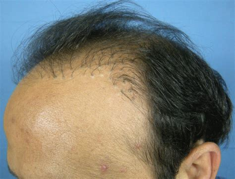 bad hair transplants image