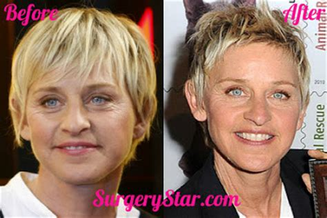celebrities who have had a neck lift celebrity plastic surgery photos celebrity plastic