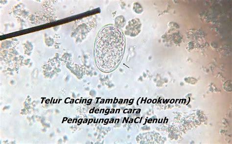 Tabung Venoject Rizqi Murtafi Ah Pemeriksaan Telur Cacing Dengan Metode