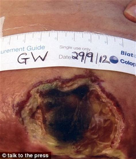 symptoms of infection after c section new mother left with 10 inch hole in her stomach after