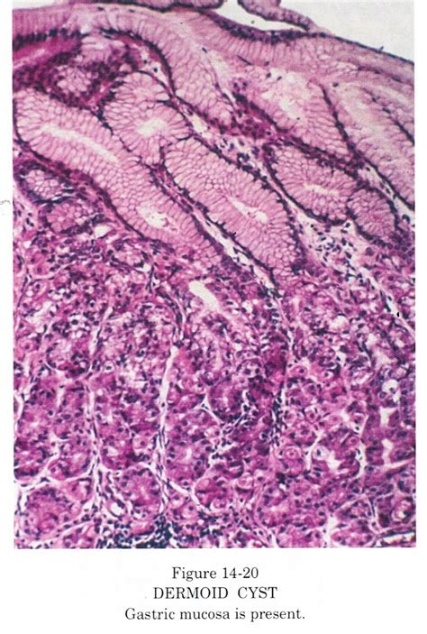 Immature Teratoma Pathology Outlines by Ovarian Teratoma Histology Www Pixshark Images Galleries With A Bite