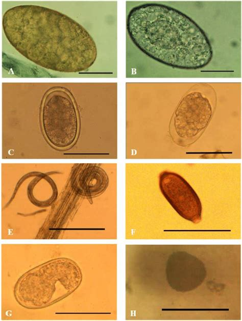 Calcium In Stool by Micrograph Of Gastrointestinal Parasites Eggs Examined In Cattle Of