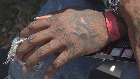 free tattoo removal for ex gang members ex member escapes troubled past through
