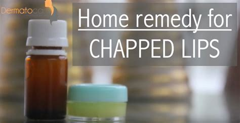 home remedies for chapped