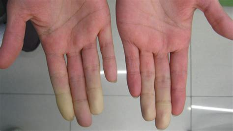 systemic lupus erythematosus causes symptoms and treatment