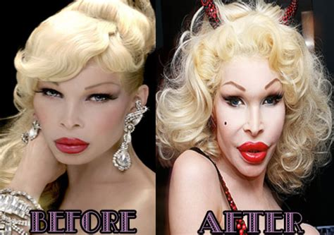 Amanda Lepore Dabblin In Acting Again by Amanda Lepore As A Before And After Plastic Surgery