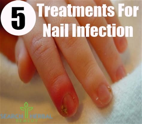 nail bed infection 5 nail infection natural treatments and cures search herbal home remedy