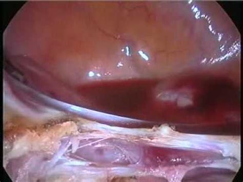 hysterectomy during c section total lap hysterectomy for previous c section dr c v hegde