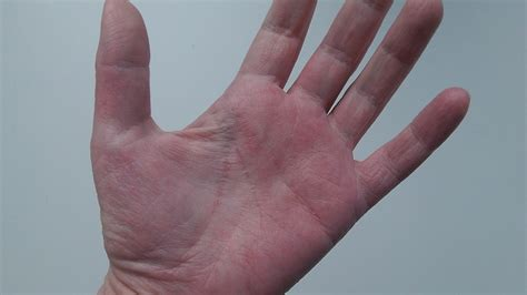red hands topical steroid withdrawal september 2012