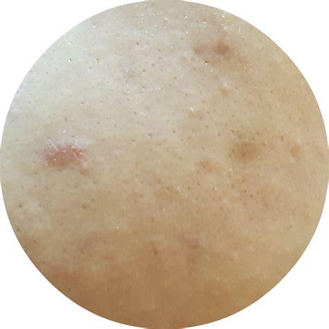 Skinmiso S Pore Corset Serum skinmiso pore corset serum review fishmeatdie