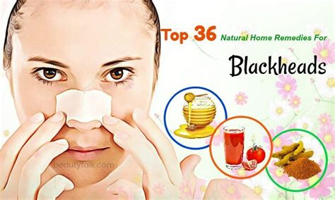 Home Remedy For Blackheads by Top 36 Home Remedies For Blackheads On And Nose